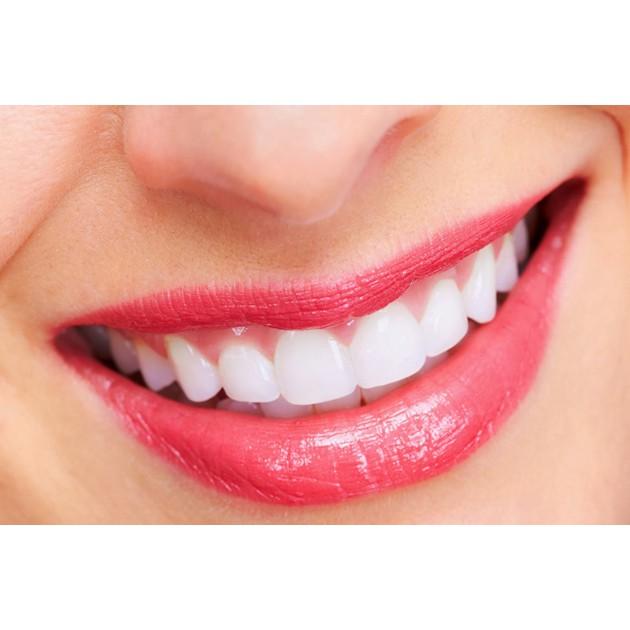 Hà Nội [Voucher] - Dịch vụ làm trắng răng bằng công nghệ laser tại Nha khoa Việt Anh