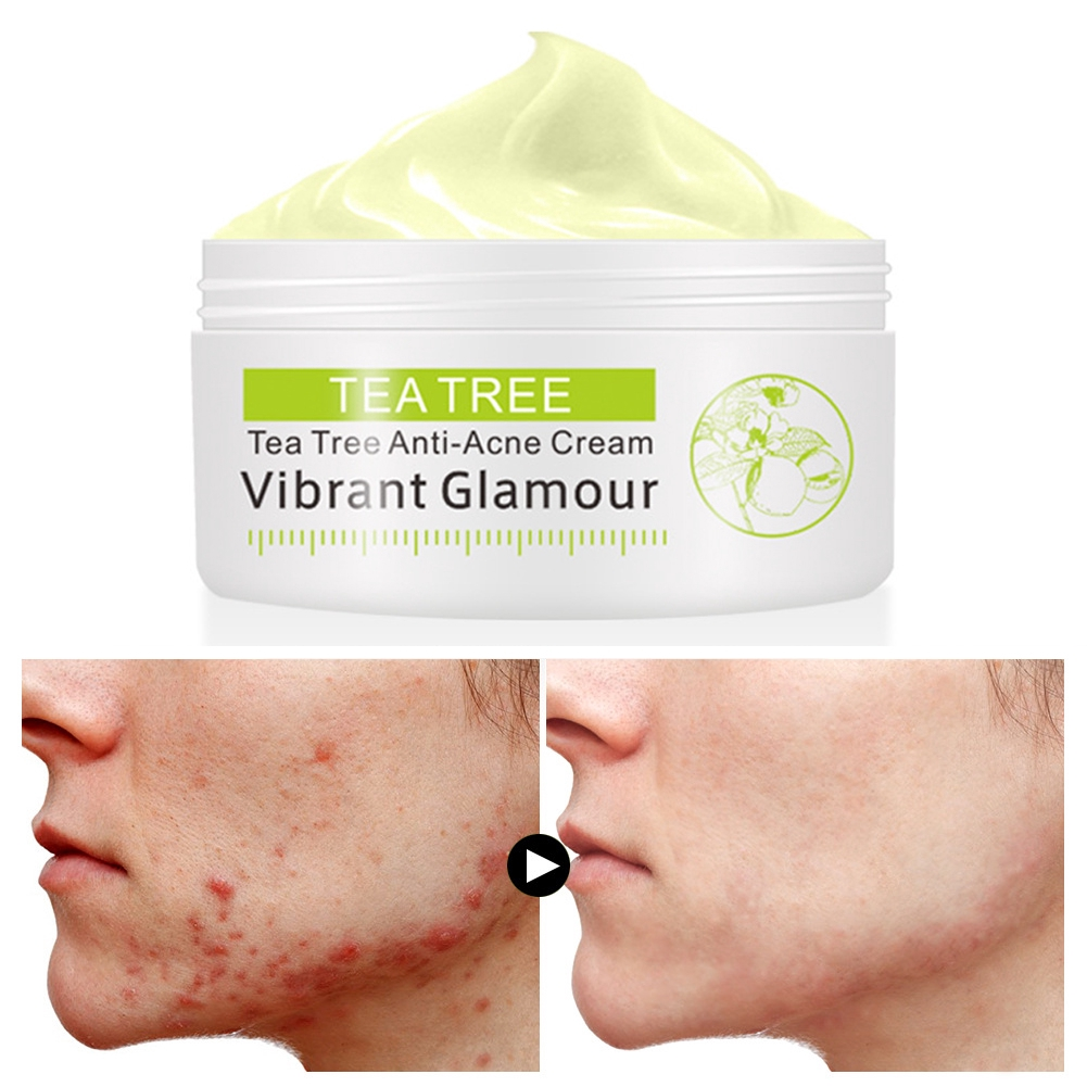 30g Oil Control Tea Tree Anti Aging Anti-acne Nourishing Natural Skin Care Face Cream