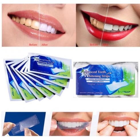 Cặp miếng dán trắng răng 3D White cho răng trên và dưới giúp tẩy trắng răng hiệu quả