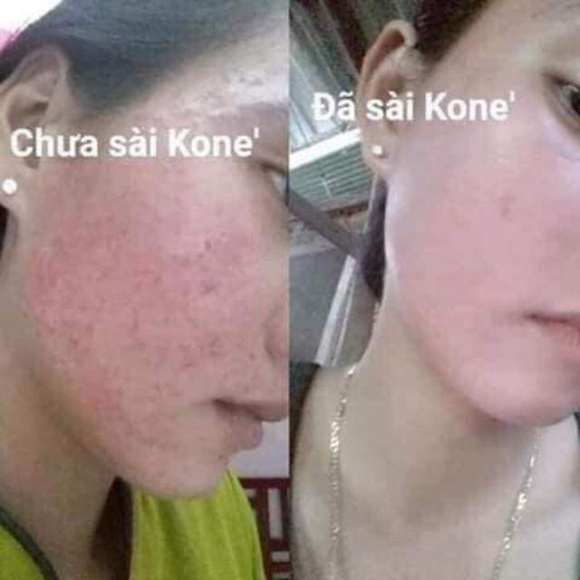 Kem Facial Cream Kone Thái Lan