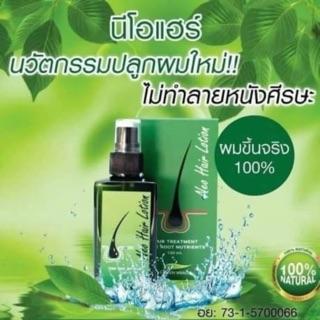 serum mọc tóc chống hói neo hair lotion