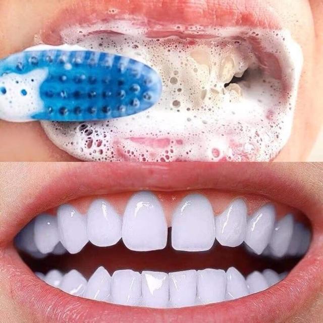 Kem đánh răng banking soda - kem đánh răng thiên nhiên