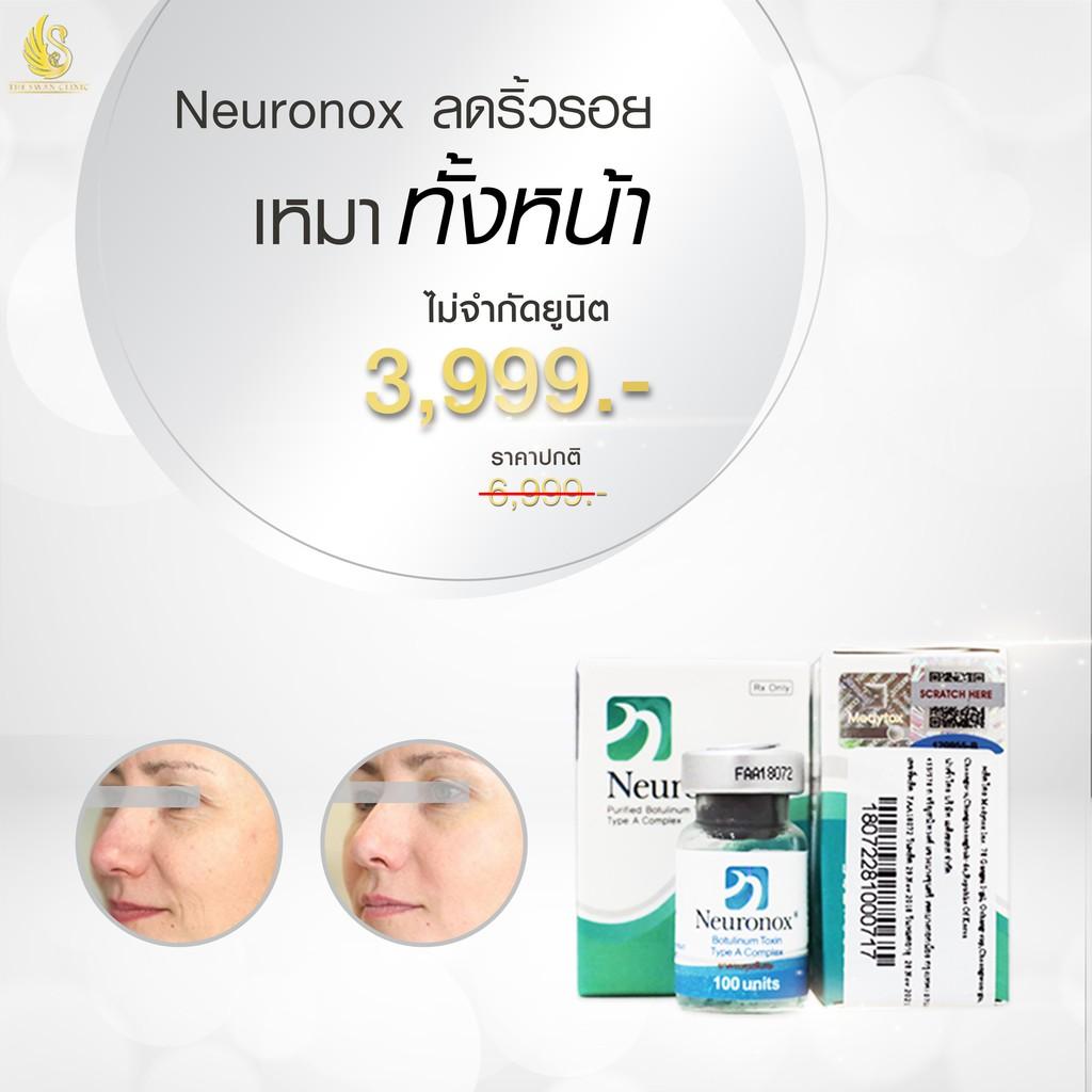 Botox Neuronox ลดริ้วรอยเหมาหน้า