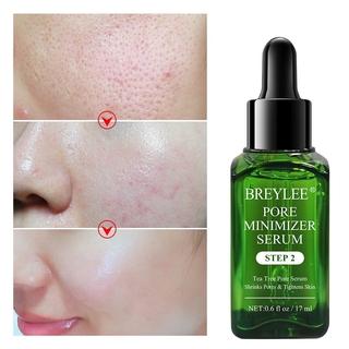Hình ảnh Bộ Mặt Nạ Và Serum Breylee Loại Bỏ Pimples Đầu Đen Và Se Khít Lỗ Chân Lông Hiệu Quả 17ml (Có Bán Lẻ)-5