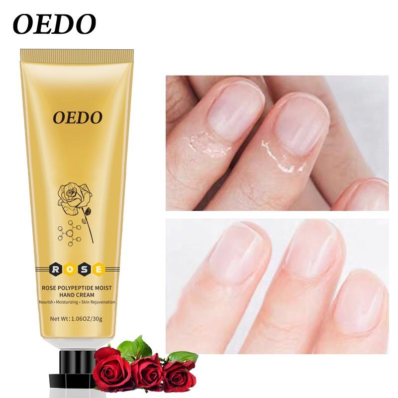 OEDO kem dưỡng trắng da tay chăm sóc làn mềm mại kem dưỡng da tay Giúp Dưỡng Ẩm Và Chống Khô Da dưỡng trắng chống khô tẩy tế bào chết cho da tay