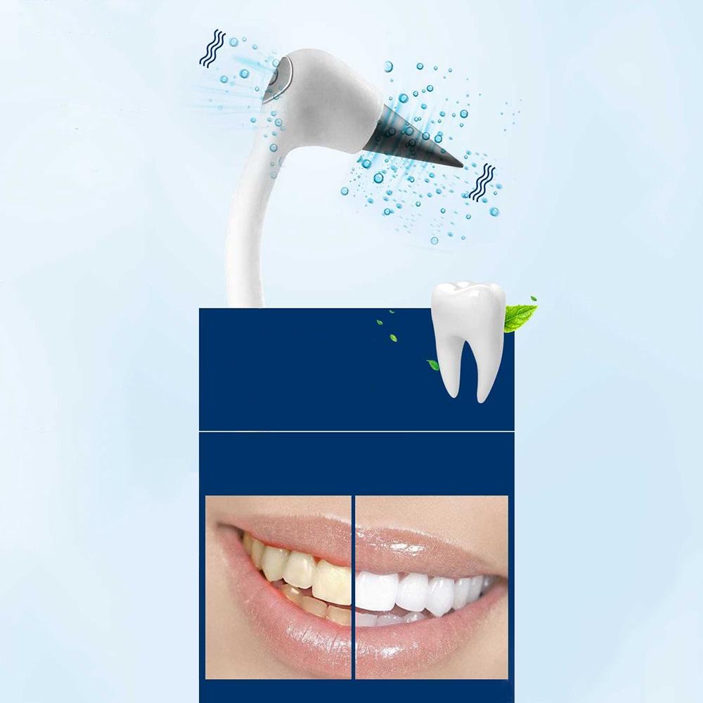Máy hỗ trợ làm sạch răng bằng sóng siêu âm chất lượng cao