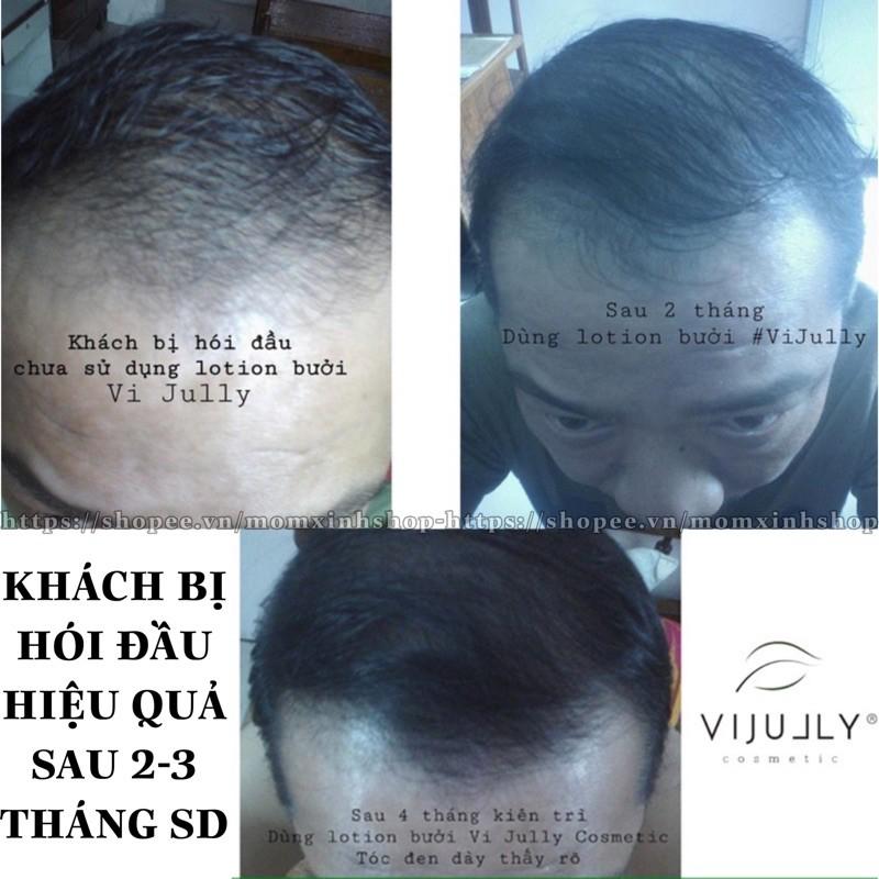 [TẶNG QUÀ] Combo 3 chai tinh dầu bưởi vijully, kích mọc tóc, trị hói