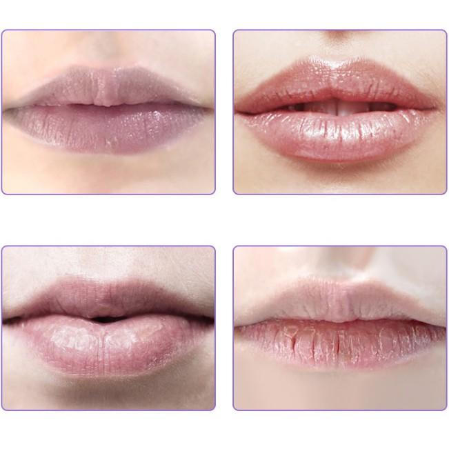 Mặt nạ dưỡng môi ngày đêm Sheloves Moist Lip Blam 10g