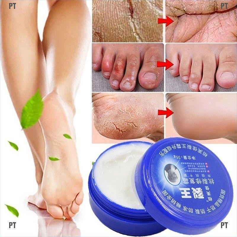 PT#Hand Foot Crack Cream Heel Chapped Peeling Anti-dry Repair Moisturized 33g/85g
