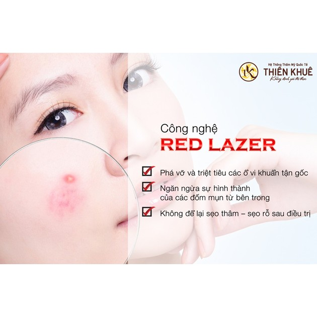Hồ Chí Minh [Voucher] - Điều trị mụn cao cấp bằng Red Laser tại TMV Quốc tế Thiên Khuê - 3549835 , 1284998411 , 322_1284998411 , 900000 , Ho-Chi-Minh-Voucher-Dieu-tri-mun-cao-cap-bang-Red-Laser-tai-TMV-Quoc-te-Thien-Khue-322_1284998411 , shopee.vn , Hồ Chí Minh [Voucher] - Điều trị mụn cao cấp bằng Red Laser tại TMV Quốc tế Thiên Khuê