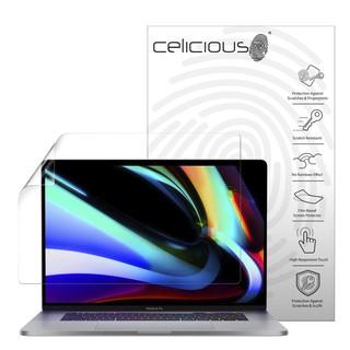 Dán màn hình HD Macbook Pro 16inch (2019 -2020) thumbnail