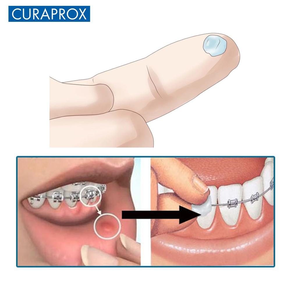 7 thanh sáp chỉnh nha Curaprox Ortho Wax (Xanh)