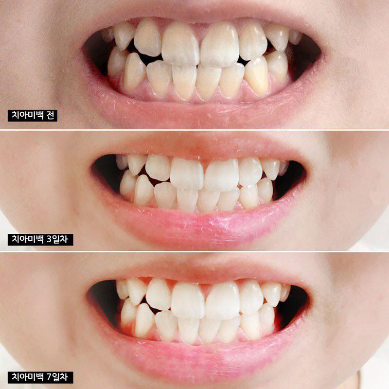 Kem Đánh Răng Median IQ 93% White 120g