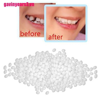 {GAV3}1Denture Solid Glue Dental Restoration Temporary Tooth Repair Kit Teeth And Gaps
