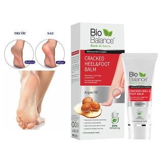 Kem Tri Nư t Go t Chân BioBalance Cracked Heel & Foot Balm 60ml [ Co Phiê u Công Bô Cu a Bô Y Tê ] thumbnail