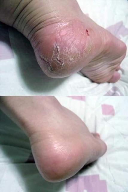 Kem thoa trị nứt gót chân Heel Spa - Thái lan