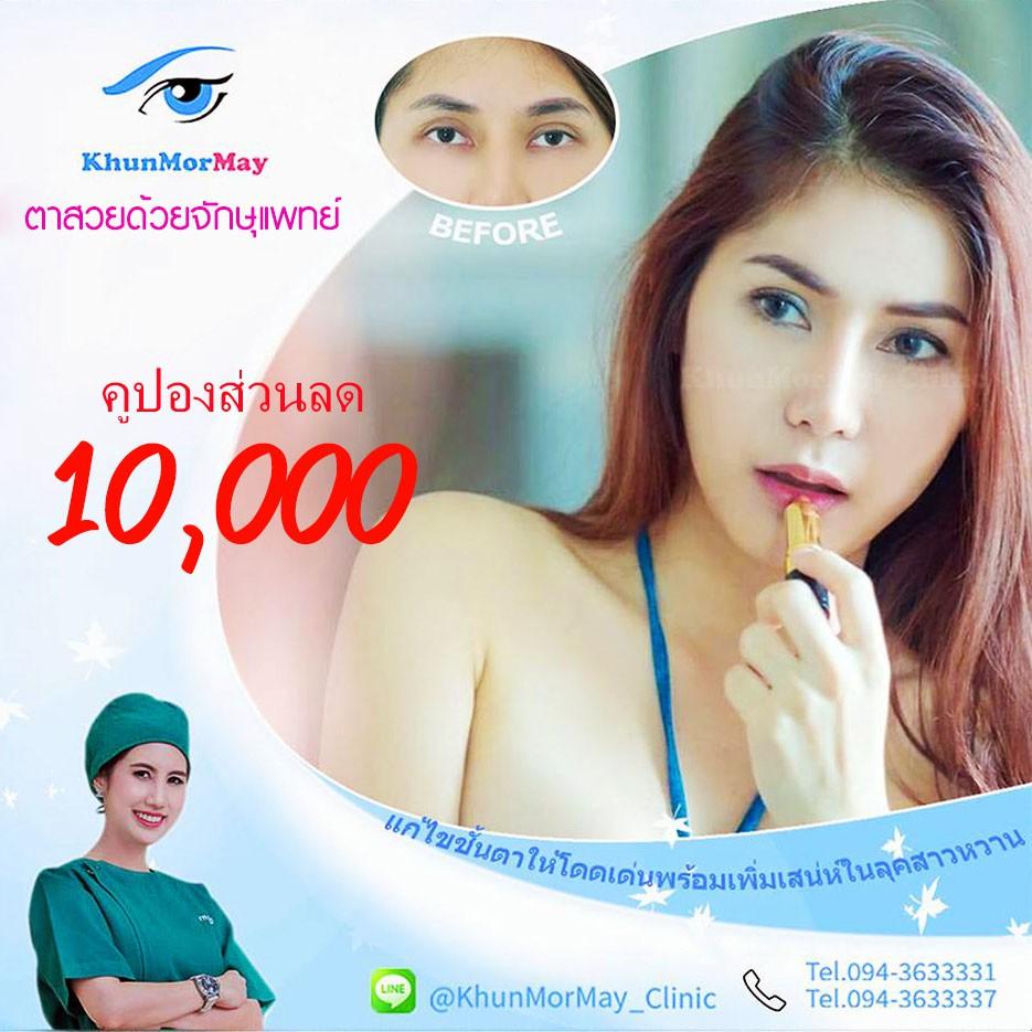 🎊คูปองส่วนลด10,000 บาท🎊 สำหรับการทำศัลยกรรมรอบดวงตาที่ คุณหมอเมย์คลินิค