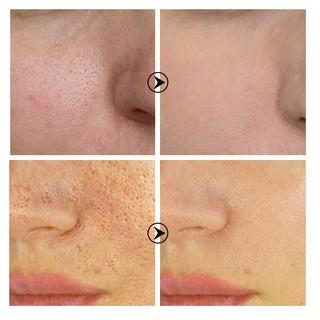 Hình ảnh Bộ Mặt Nạ Và Serum Breylee Loại Bỏ Pimples Đầu Đen Và Se Khít Lỗ Chân Lông Hiệu Quả 17ml (Có Bán Lẻ)-4