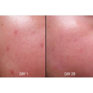 Lotion loại bỏ tế bào chết Paula s Choice Skin Perfecting 8% AHA Lotion 100ml-2