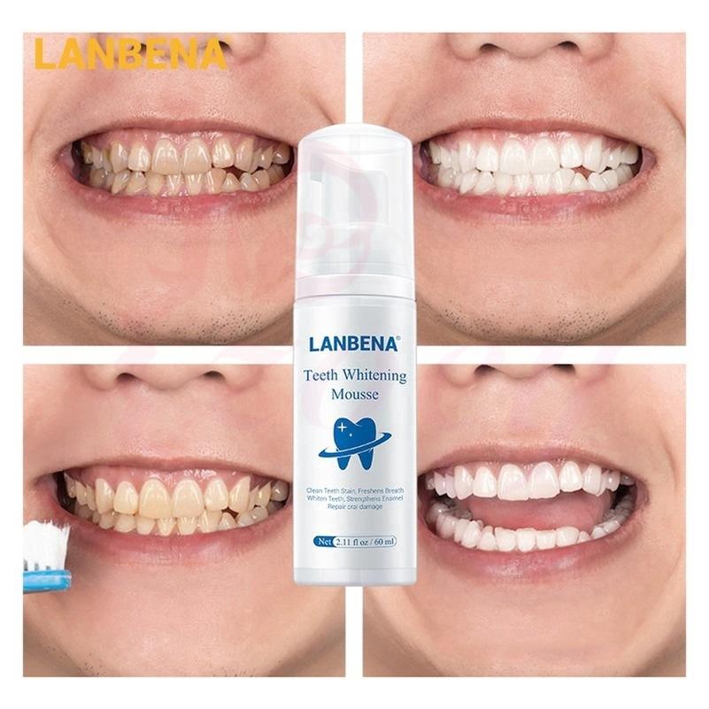 [Hàng mới về] Tinh chất làm trắng răng LANBENA giữ vệ sinh miệng