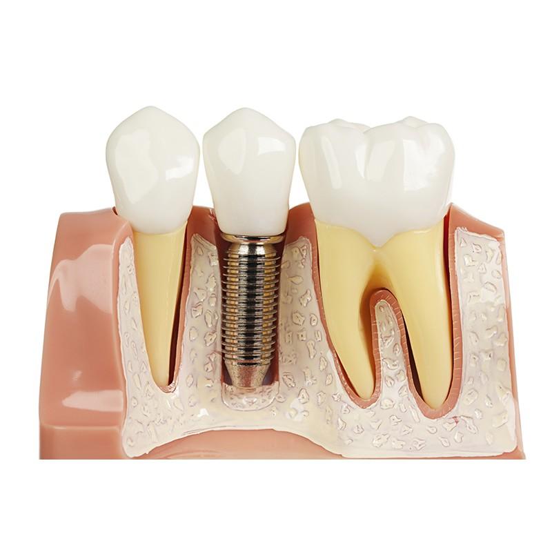 Hồ Chí Minh [Voucher] - Trồng răng Implant Bảo hành 01 năm tại Nha khoa thẩm mỹ 3E