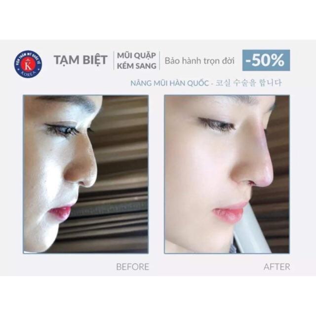 HN[VOUCHER]- Nâng mũi sụn Hàn Quốc Soft life