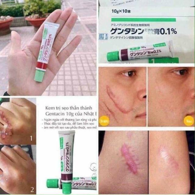 Thuốc  Trị Sẹo  Gentacin Nhật