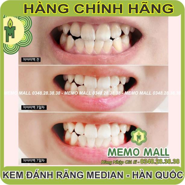 (CHÍNH HÃNG-DATE MỚI) Kem đánh răng Median HÀN QUỐC 93% đủ màu TRẮNG SẠCH RANG -THƠM MIỆNG