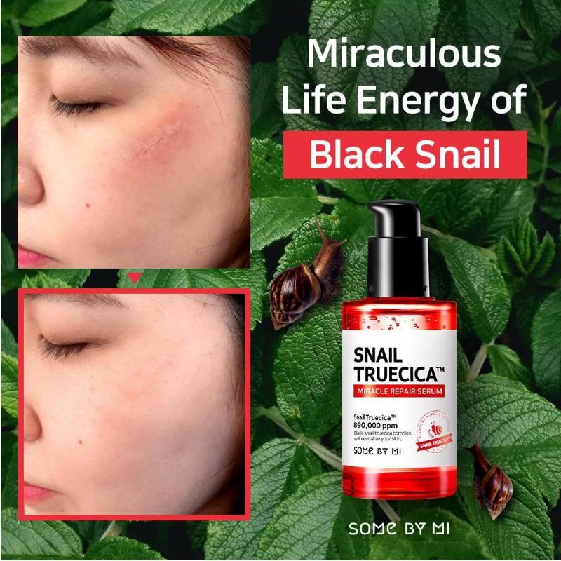 Tinh chất ốc sên đen trị sẹo lõm - sẹo mụn Some By Mi Snail Truecica Miracle 50ml