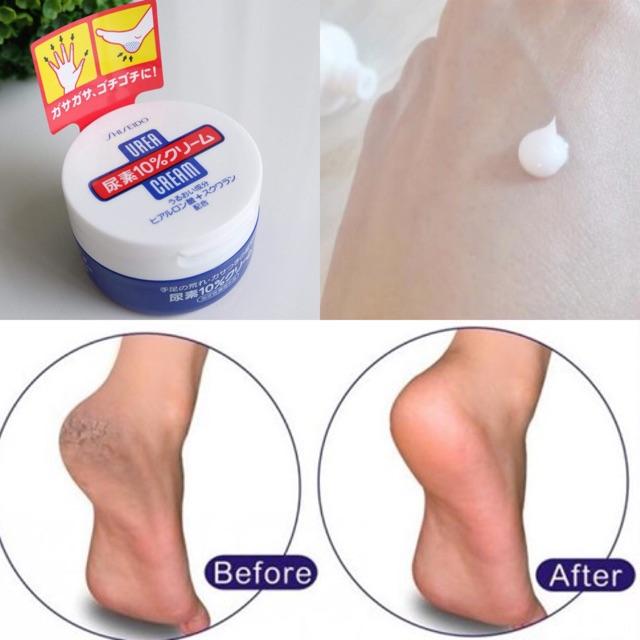 Kem trị nứt gót shiseido urea cream