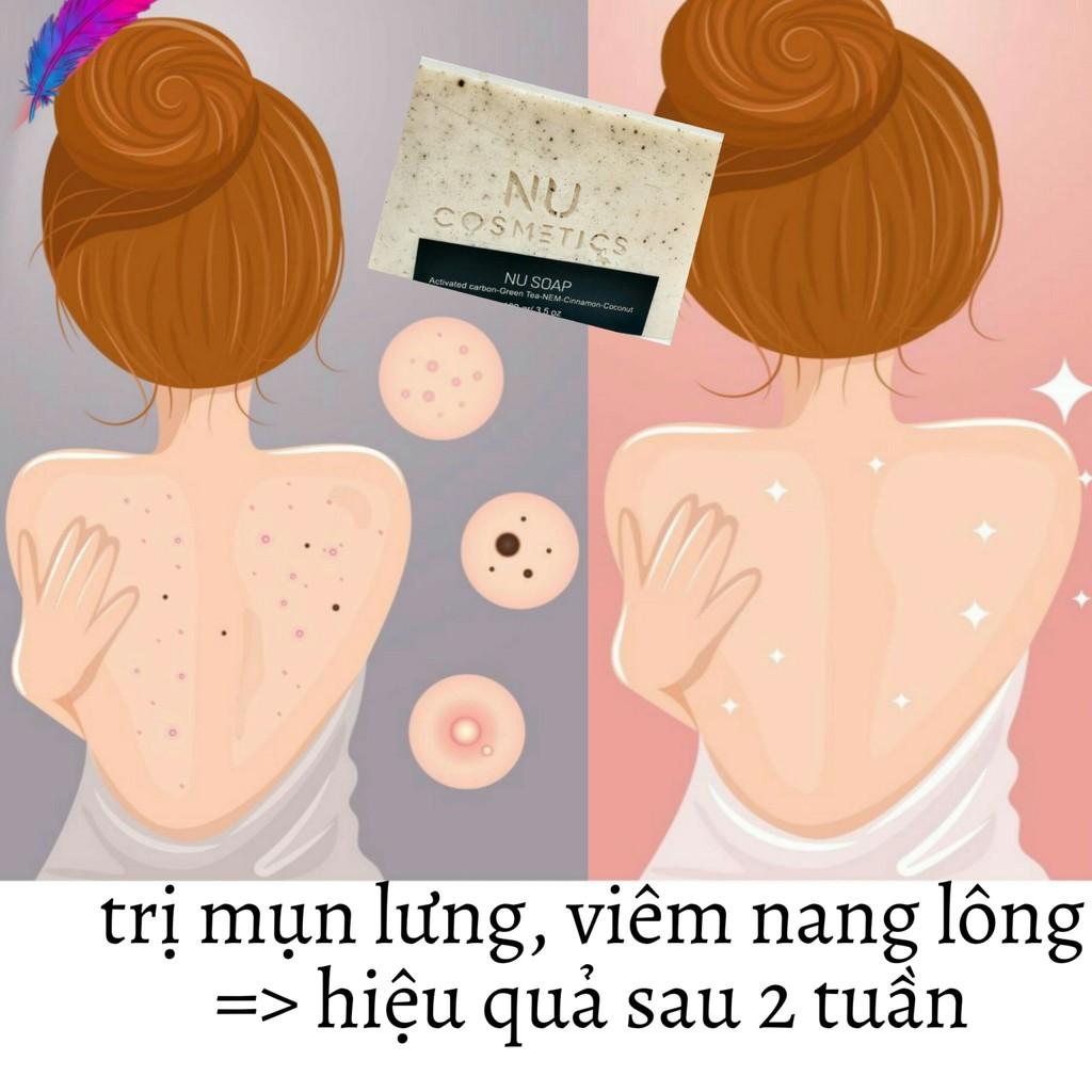 Soap Handmade Trị Mụn Lưng, Trị Mông Sần Sùi Thơm Tinh Dầu Nhẹ Nhàng NU.Cosmetics