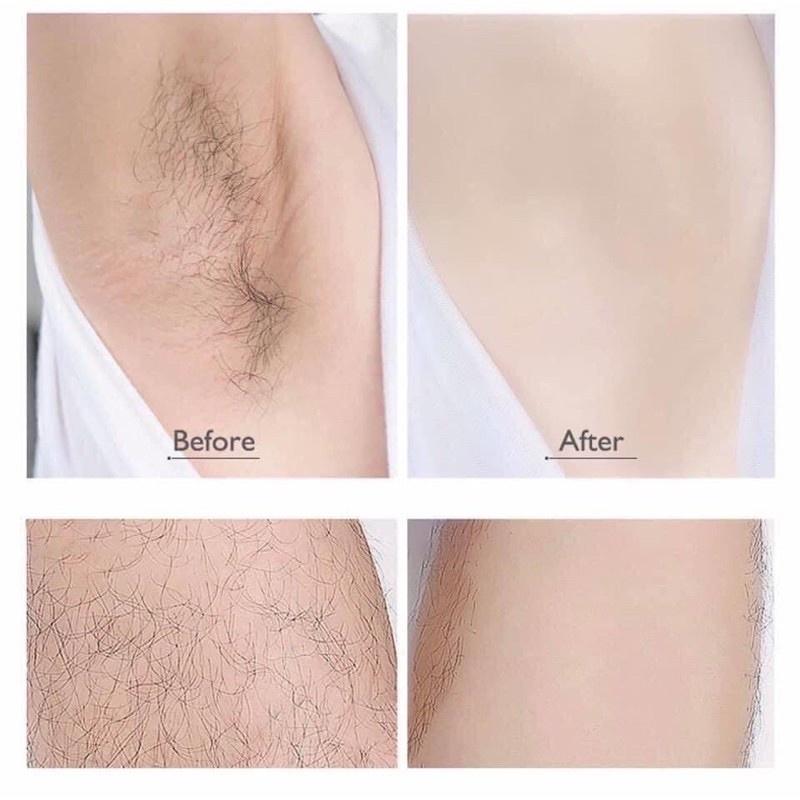 Chai xịt tẩy lông Detvfo 150ml tạo bọt tẩy lông hiệu quả không đau rát