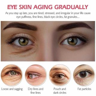 Bộ Serum Protein Dưỡng Mắt Bộ Kem Dưỡng Vibrant Glamour Da Chống Nếp Nhăn Xóa Thâm Quầng Bọng Mắt (Kem dưỡng mắt 20g +Huyết thanh mắt15ml) 4