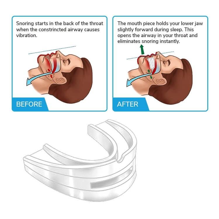 Miếng ngậm chống nghiến răng, chống ngáy, thiết bị bảo vệ hàm răng khi ngủ - Shop Tiện Ích Vượt Trội