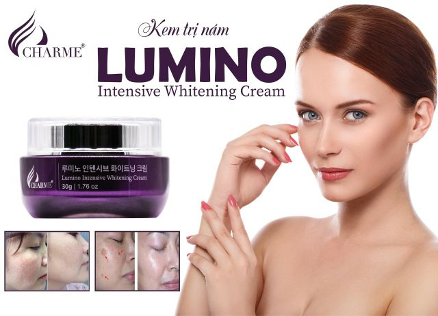 Kem face nám Charme Lumino 30gr | Shopee Việt Nam