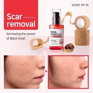 Tinh chất trị sẹo rỗ ốc sên Some by mi Snail truecica micrale repair serum -serum trị sẹo căng bóng da ốc sên some by mi