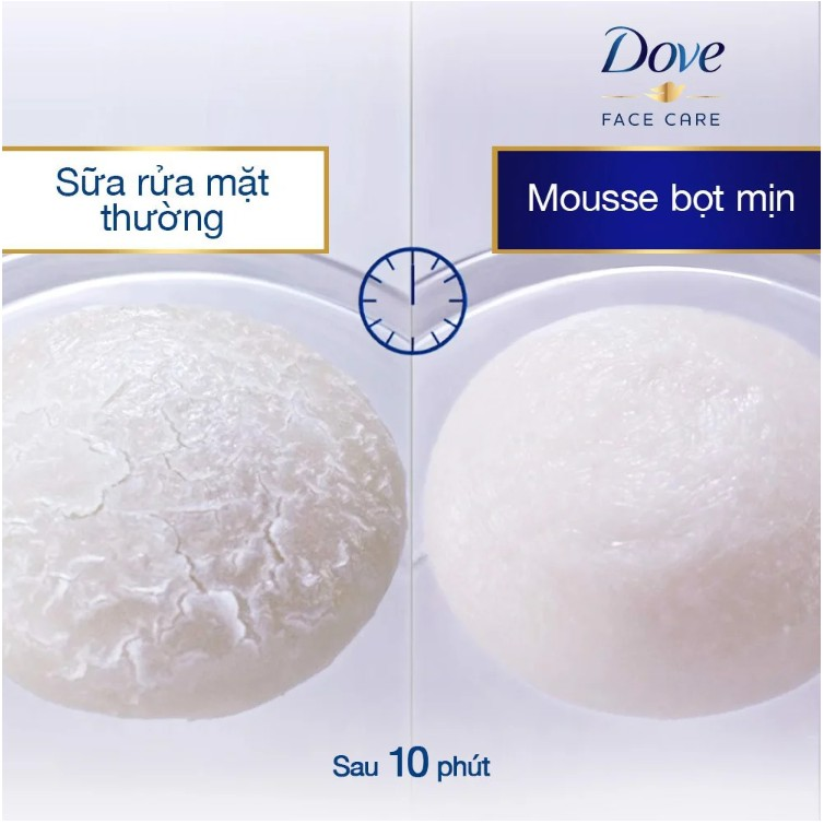 Sữa Rửa Mặt Dạng Bọt Dove Beauty Serum Facial Cleansing Mousse For Less  Visible Pore And Oil Control 160ml | Shopee Việt Nam