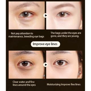 Hình ảnh [Mã COSCCB26 hoàn 8% xu đơn 250K] Hộp 60 miếng mặt nạ mắt từ collagen dưỡng ẩm chống nếp nhăn và thâm quầng-5