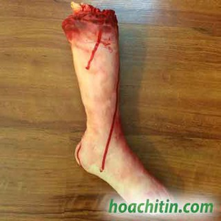 Cẳng chân máu