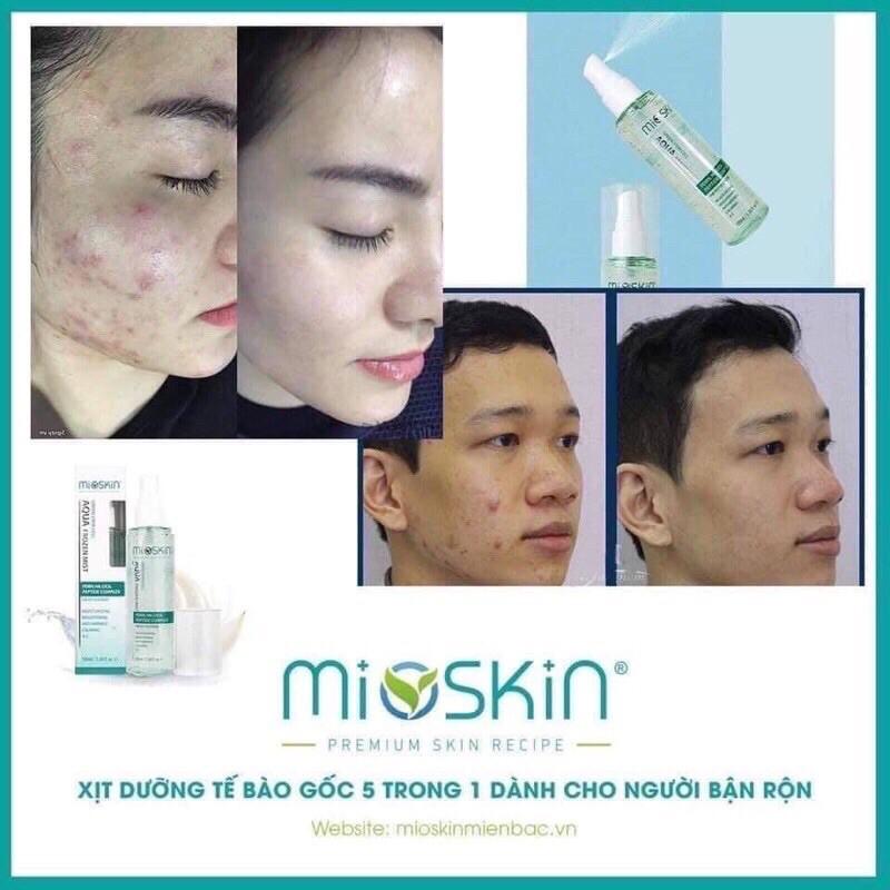 [CHÍNH HÃNG KOREA] Xịt khoáng tế bào gốc MIOSKIN