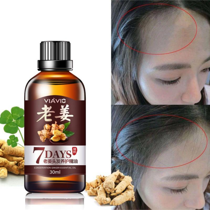 Tinh dầu gừng kích thích mọc tóc cung cấp dưỡng chất chống rụng tóc