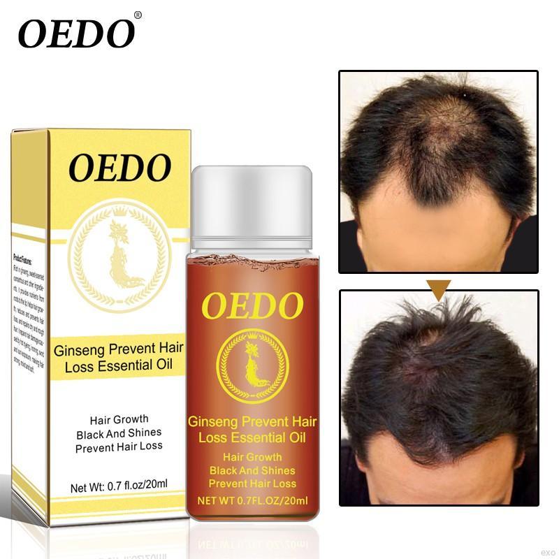 [Hàng mới về] Tinh Dầu Kích Thích Mọc Tóc OEDO Giúp Chống Rụng Tóc Cho Mái Tóc Đen Bóng