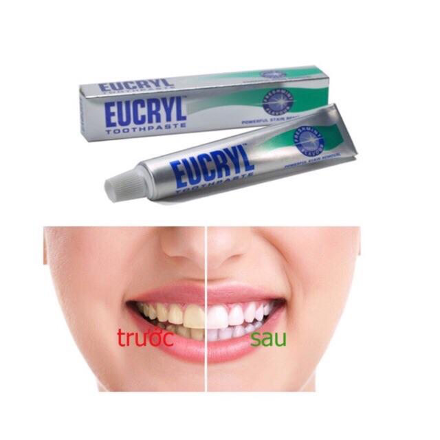 Kem đánh răng Eucryl – kem làm trắng răng từ Anh Quốc - 3369994 , 1216585558 , 322_1216585558 , 80000 , Kem-danh-rang-Eucryl-kem-lam-trang-rang-tu-Anh-Quoc-322_1216585558 , shopee.vn , Kem đánh răng Eucryl – kem làm trắng răng từ Anh Quốc