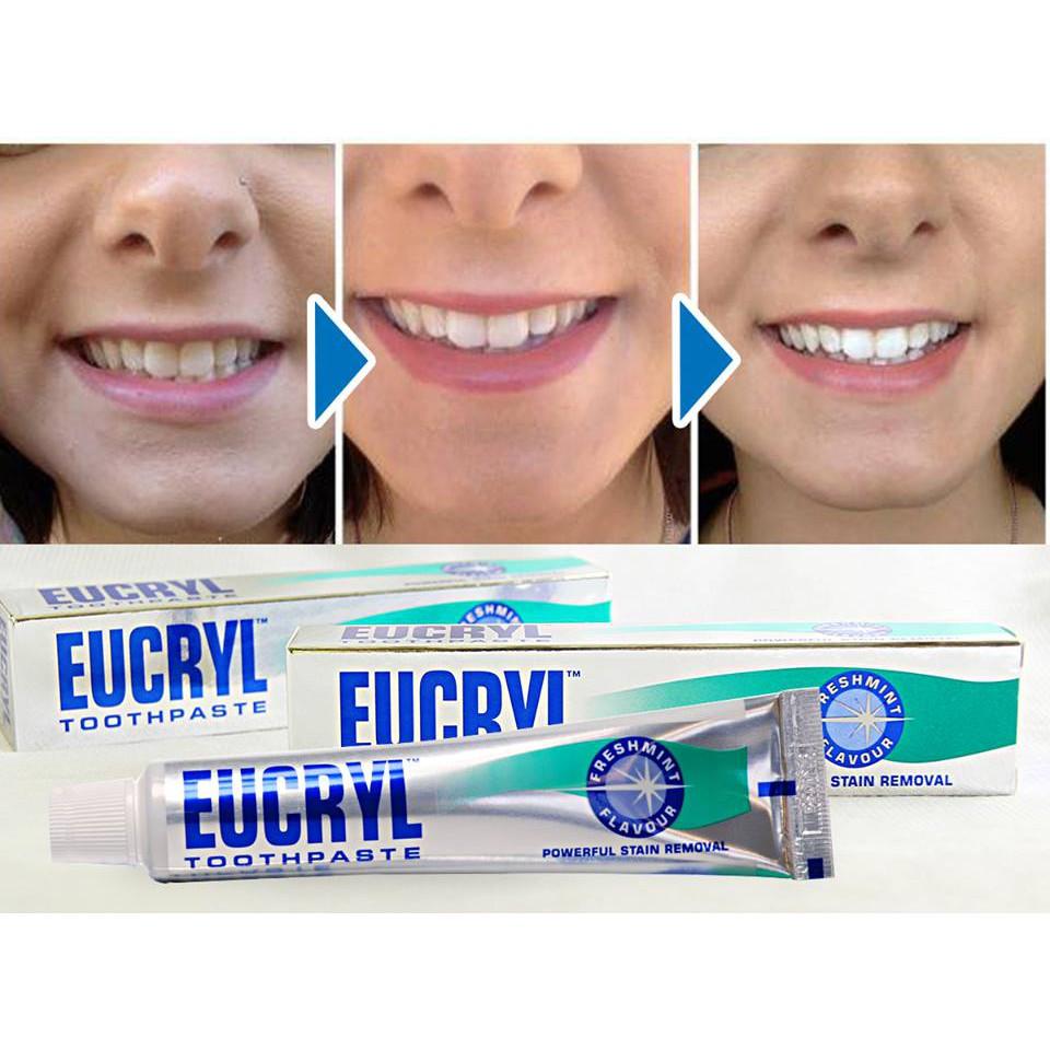 Kem Đánh Trắng Răng Eucryl Toothpaste