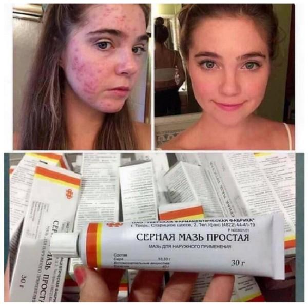 [HSD 03/2020] Kem trị mụn lưu huỳnh 30g từ Nga