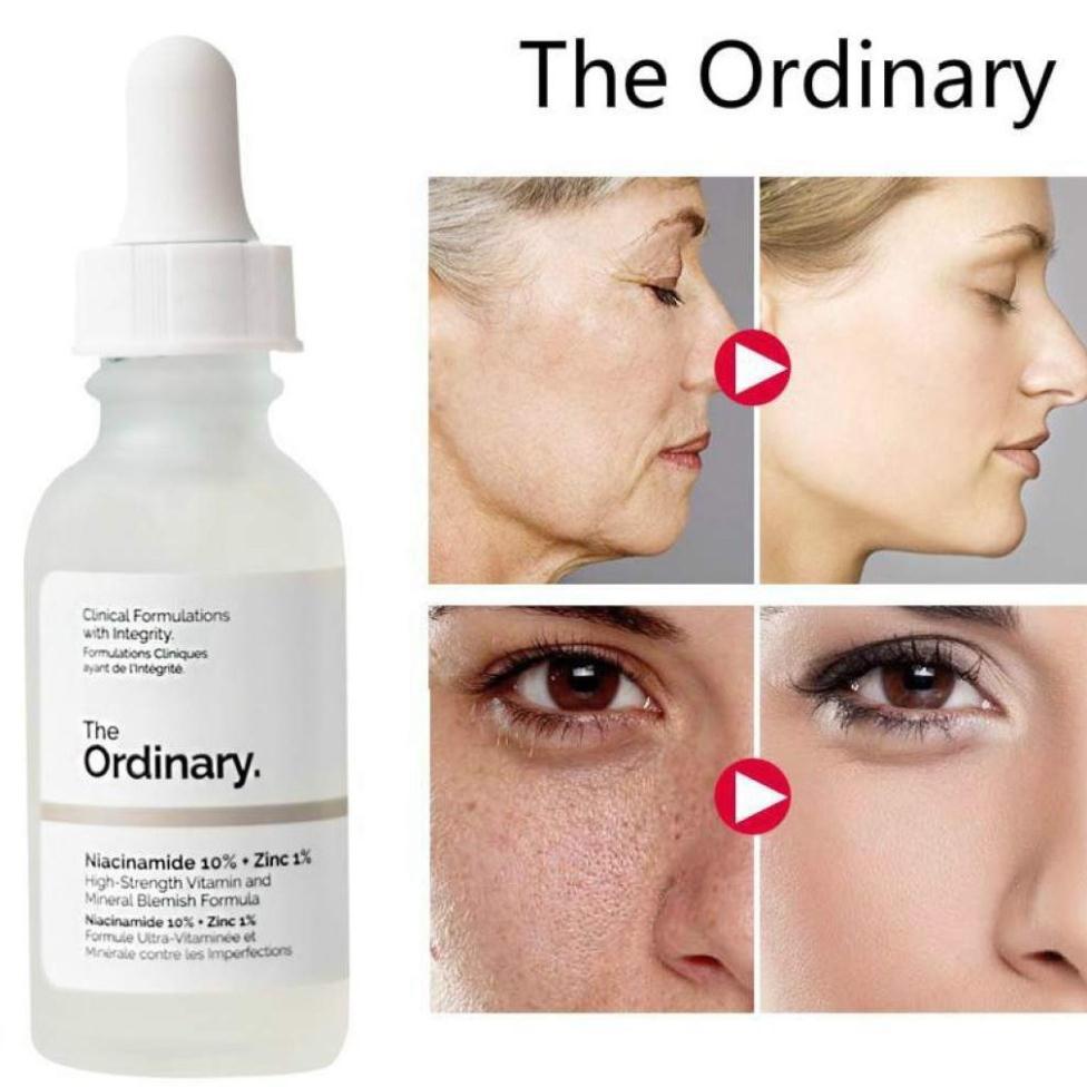 The Ordinary Niacinamide 10%+Zinc 1% - Tinh Chất Giảm Mụn, Se Khít Lỗ Chân Lông, Sáng Da 30ml