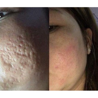 Combo kết hợp thay da sinh học để điều trị mụn,nám,nâng sẹo rỗ hiệu quả handmade