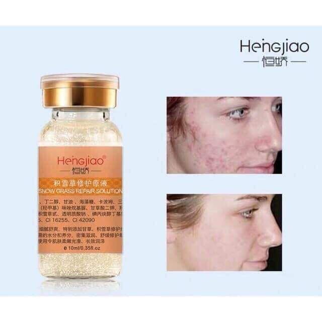Tế bào gốc tươi Heingiao