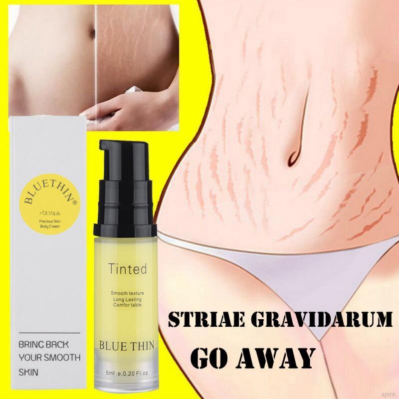 Kem trị rạn da nuôi dưỡng da mềm mại mịn màng hiệu quả