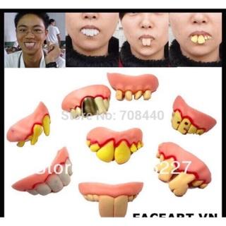Răng vẩu- răng thị nở- răng hoá trang